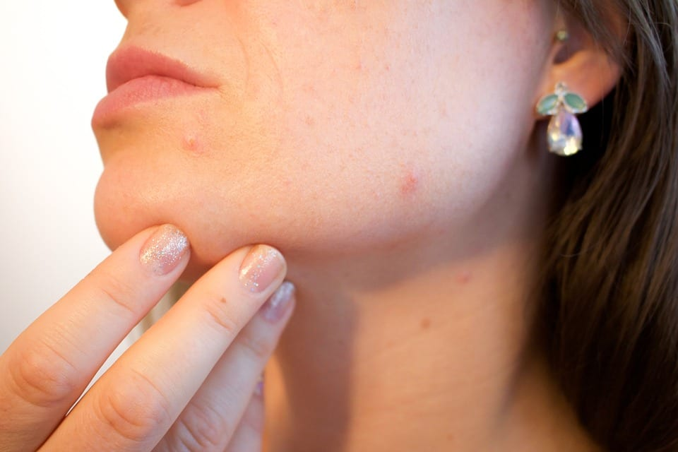 Eat 6 kinds of nutrients to get rid of acne scars